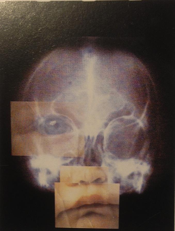 felia skull